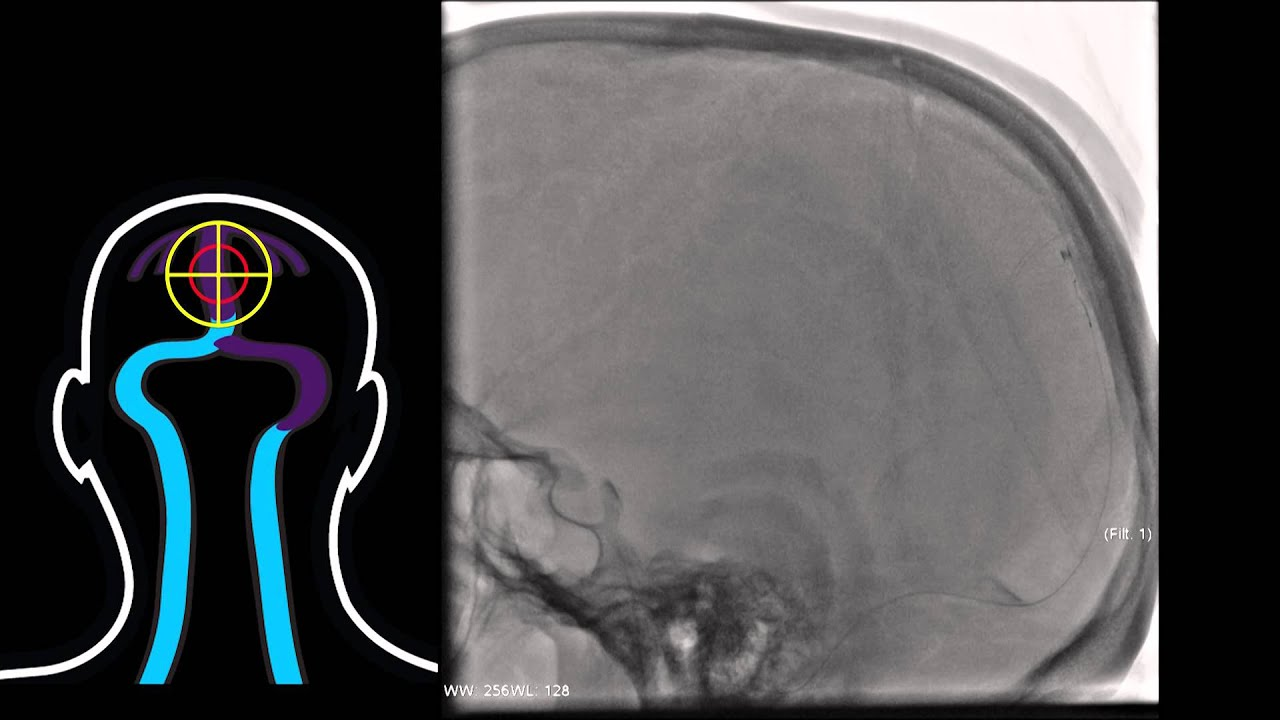 Interventional Stroke Rounds - Venous Sinus Thrombosis - YouTube