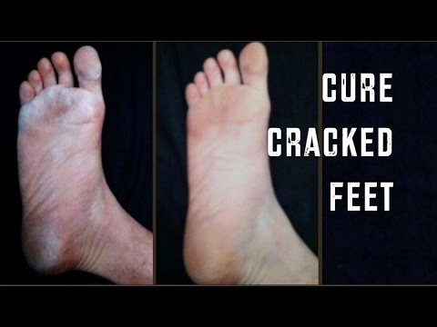 how to cure cracked skin between toes