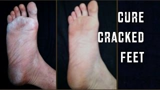 How To Cure Dry, Cracked Feet | Cheap Tip #165