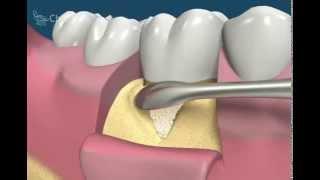 Направленная регенерация (Обучающее видео для стоматологов)
