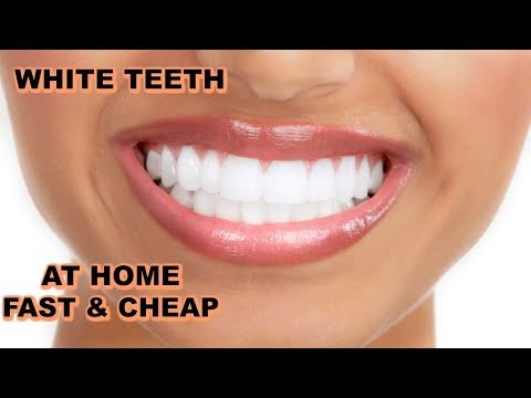 💖GREAT WAY TO WHITEN TEETH AT HOME FAST & CHEAP 😬