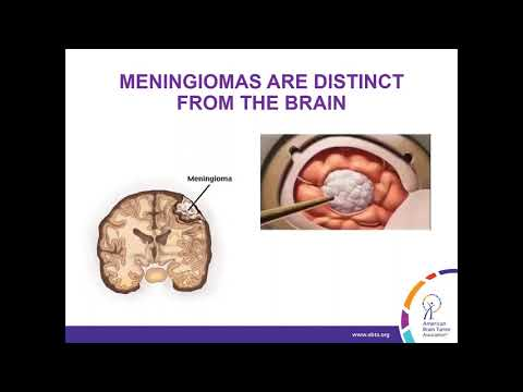 WEBINAR: Treatment Strategies For Meningioma