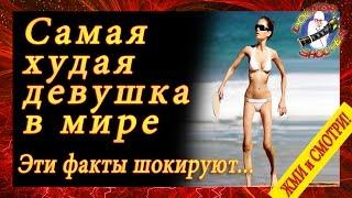 Самый худой человек в мире – история Валерии Левитиной   страшная «красота» анорексии
