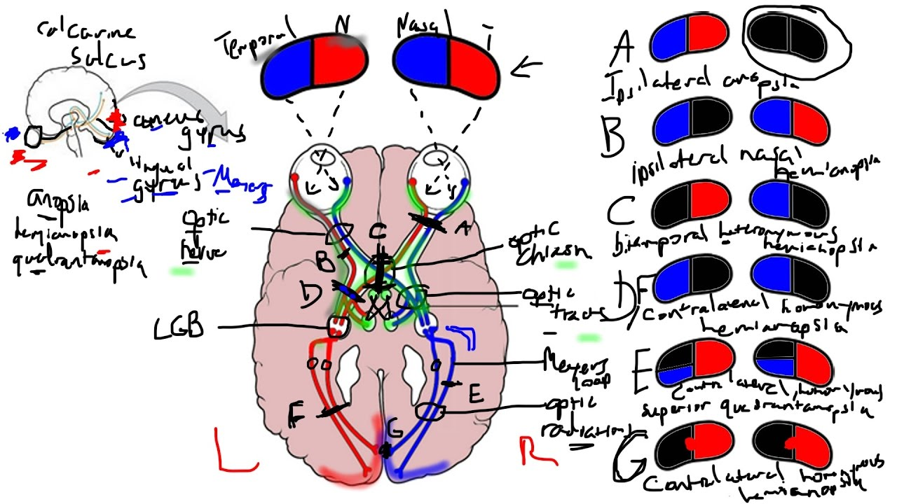 Visual Pathway and Lesions - YouTube