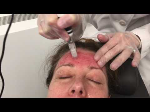 Microneedling at Schweiger Dermatology Group