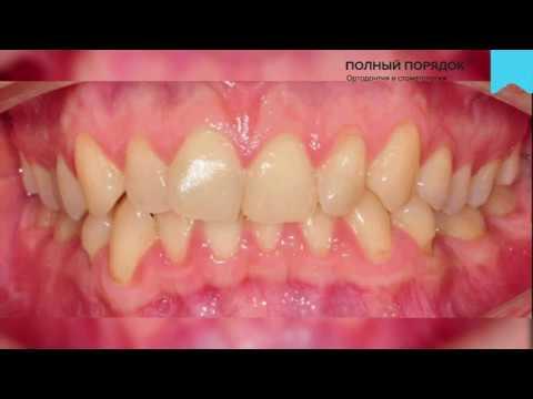Результаты лечения металлическими брекетами Damon Q за 17 месяцев