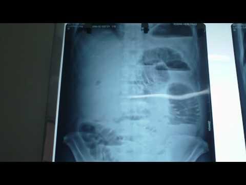 Đánh giá diễn tiến tắc ruột trên x-quang bụng