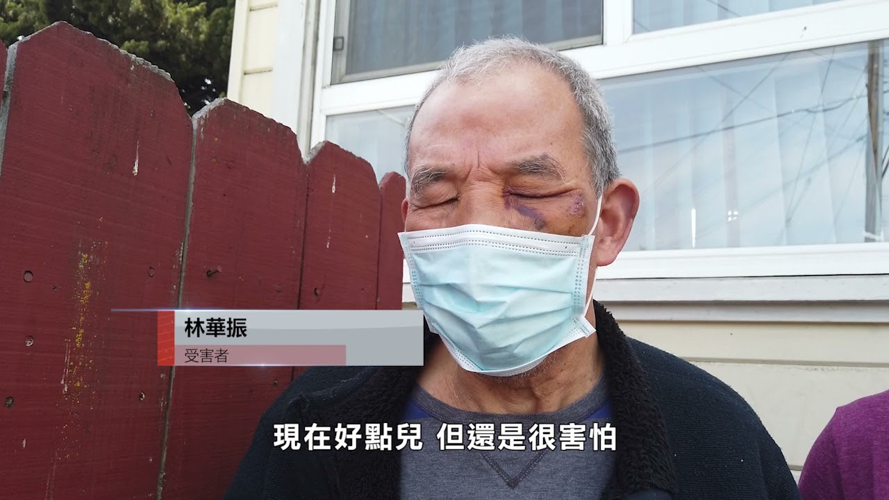 【天下新聞】屋崙市: 68歲長者乘坐巴士無故被襲縫五針 社區領袖抗議SB82法案