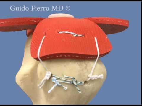 Mattress Suture Configuration for Transosseous Rotator Cuff Repair - Guido Fierro, MD