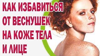 Как избавиться от веснушек на коже тела и лице