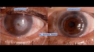 Corneal Transplant: Gift of Vision