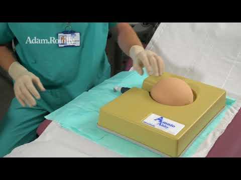 Amniocentesis CVS - Amnio Abby