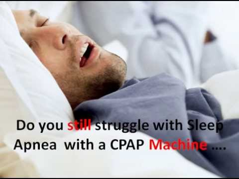 Sleep Apnea Treatment Without Cpap Natural Treatment Youtube