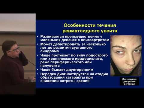 Валиева С.И., Дифференциальная диагностика артритов у детей.