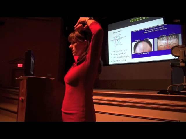 Emina Karamanovski talks about methods to improve graft survival during hair restoration procedures