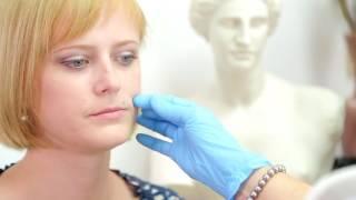 Увеличение губ гиалуроновой кислотой - программа