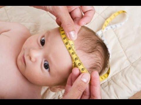 مراحل نمو الرأس عند الطفل حديث الولادة Youtube
