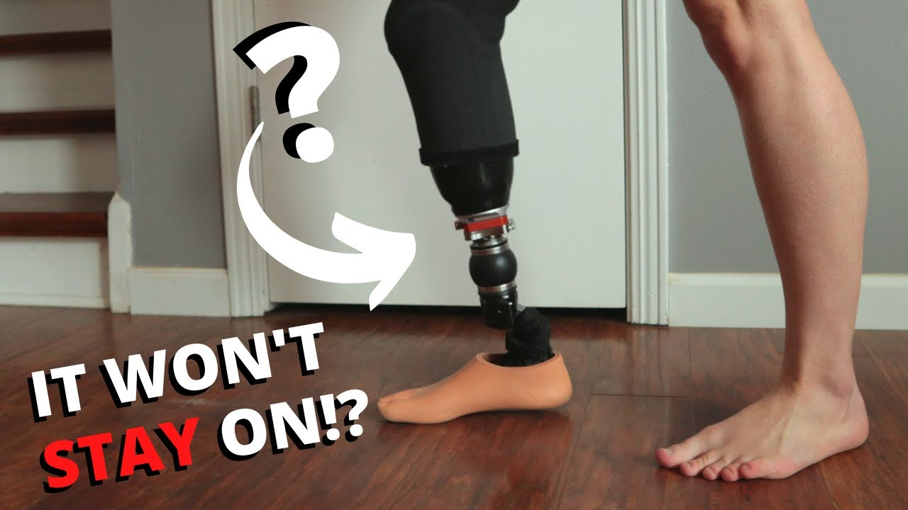 My Prosthetic Leg Won't STICK To Me?! (Socket Troubleshooting)