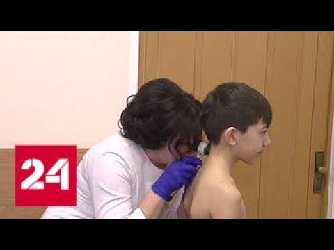 Врачи центра имени Блохина рассказали о профилактике и лечении меланомы - Россия 24