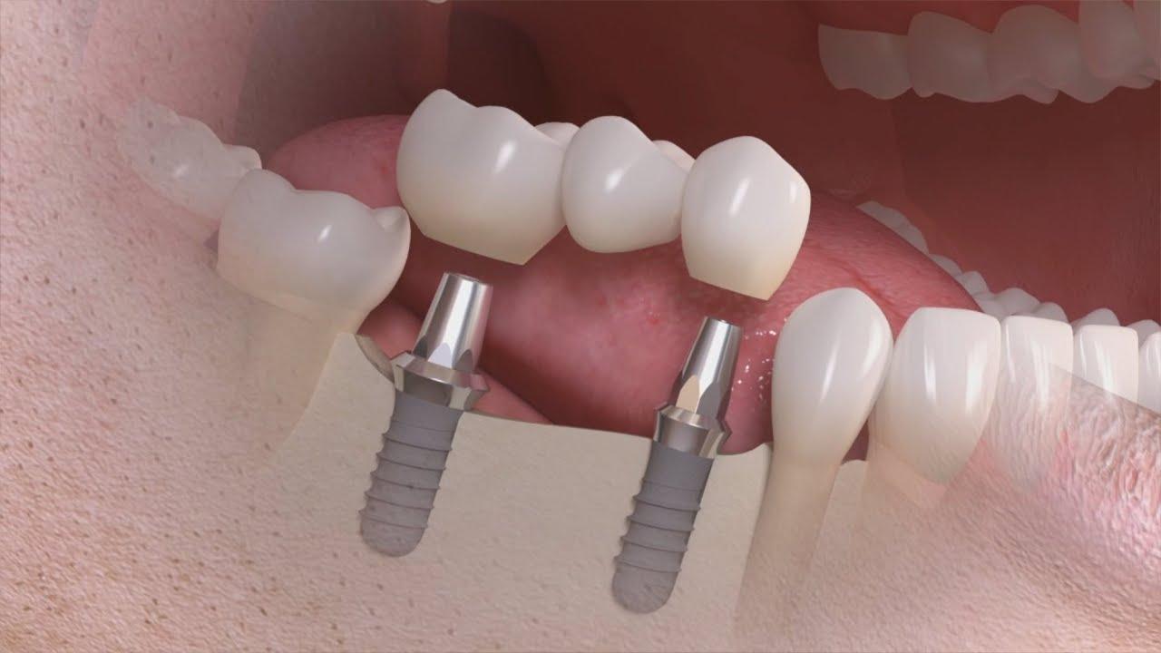 Zahnimplantate - Kosten & Preisvergleich! Bei Kronen bis zu 80 ...