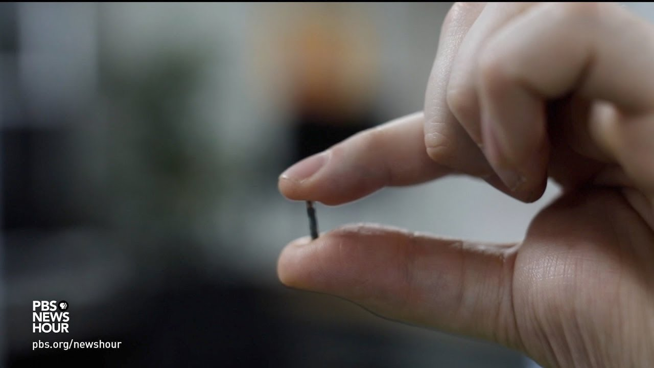 Microchips in humans: Great promise, greater risk?