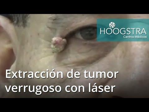 Extracción de tumor verrugoso con láser (18224)