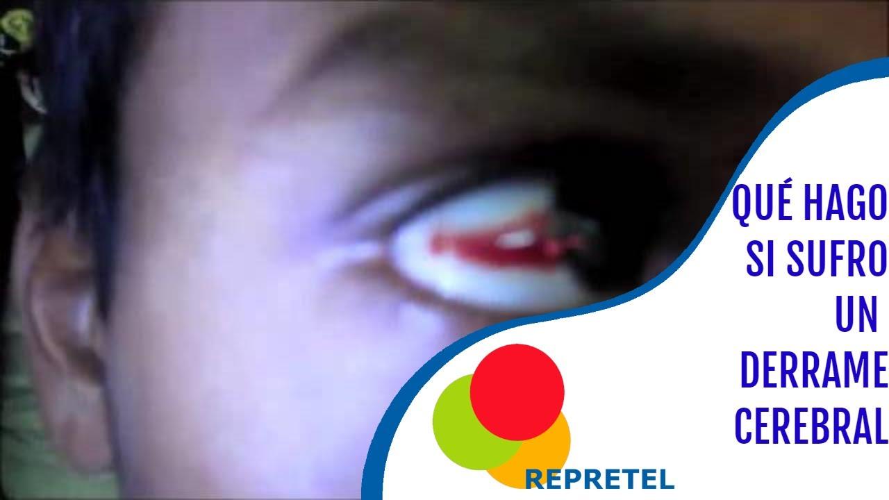 Derrame al ojo causas