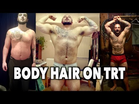 MY BODY HAIR ON TRT: Before & After (Testosterone Replacemen