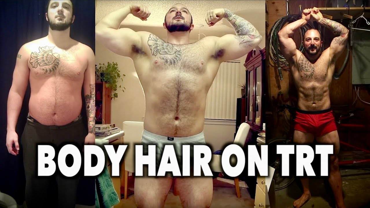 My Body Hair On Trt Before After Testosterone Replacement