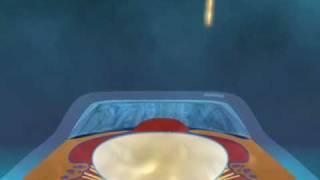 인트라 라식수술(Intra Lasik)  -강남밝은세상…