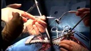 Hearts and Minds: Open heart surgery at the Wellcome Institute