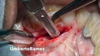 Harvesting Connective tissue graft from the Palate- Single IncisionTechnique