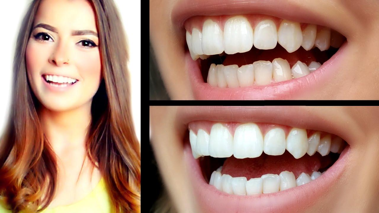 alta weiße Zahnaufhellung Bewertung