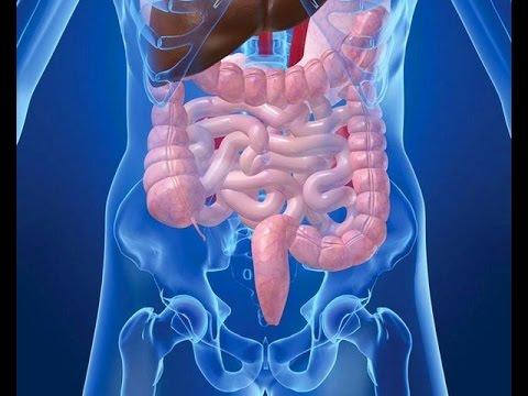 дисбактериоз кишечника что это