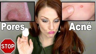 FOUTEZ LA PAIX À VOTRE PEAU : Solutions anti-acné & pores dilatées!
