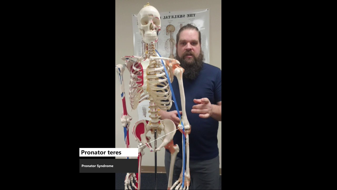 How Does Median Nerve Compression Happen? (Video)