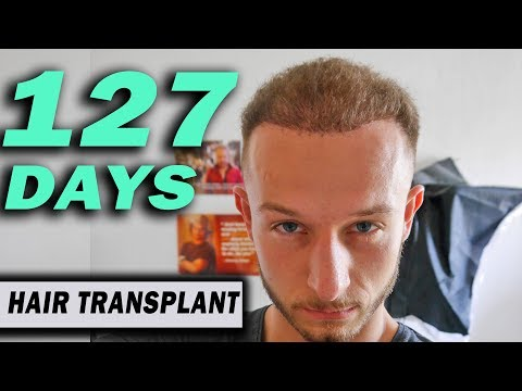 Fue Hair Transplant 127 Days (post op) Istanbul, Turkey GROWTH STAGE