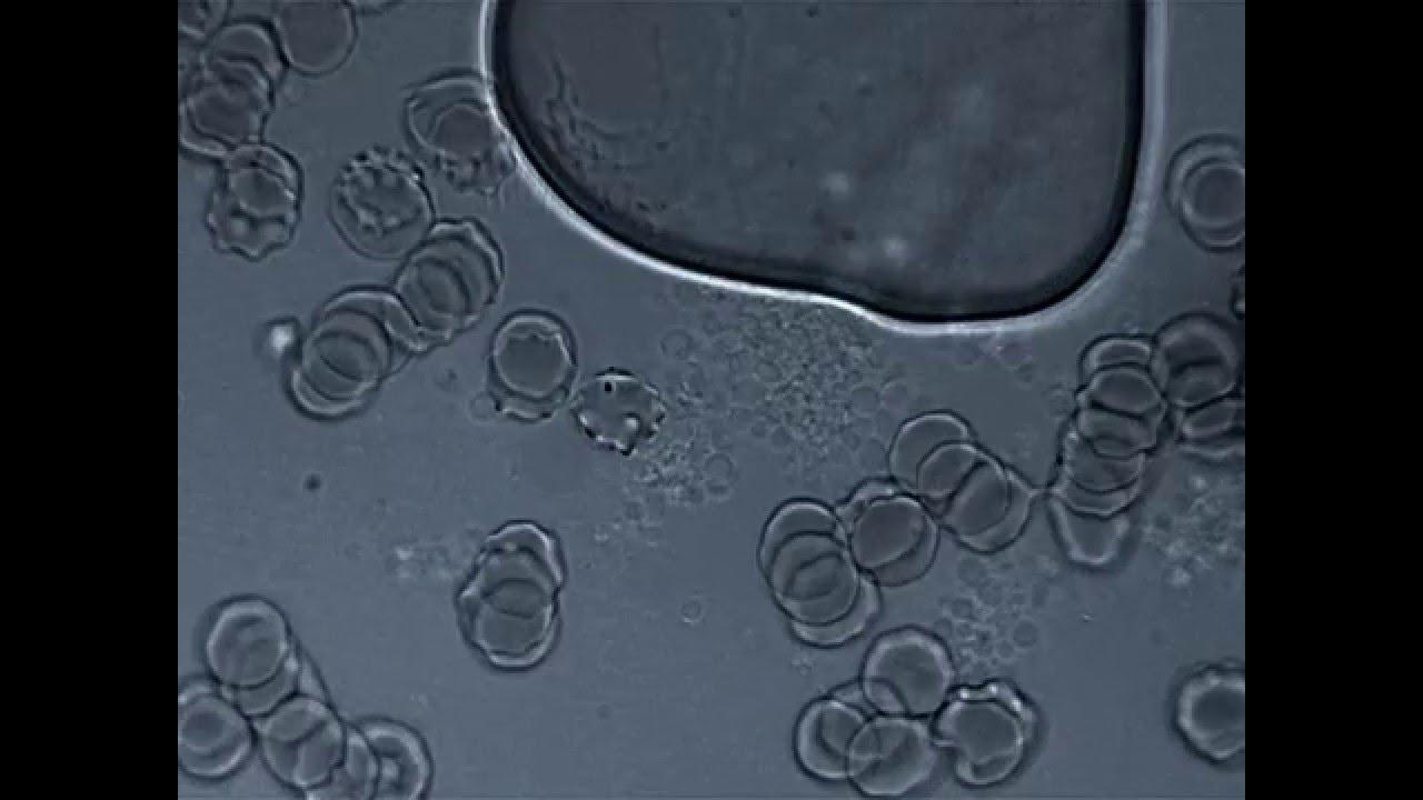 L-form Bacteria/Mold Bio-film - YouTube