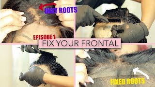 FIX YOUR FRONTAL SERIES: I over bleached  my Lace Frontal knots  | SaviHairCollection