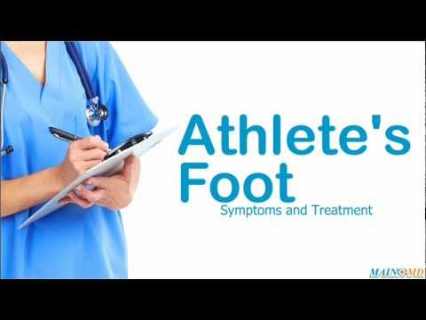 Athlete's Foot ¦ Treatment and Symptoms