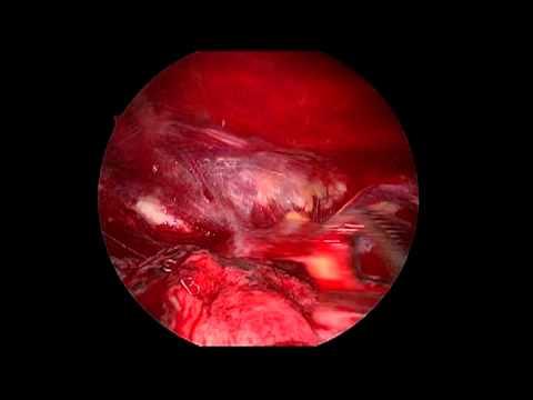 My VATS with Pleurodesis Surgery - YouTube   480 x 360 jpeg 8kB