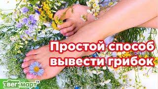 Простой способ вывести грибок на ступне и ногтях. Михаил Советов