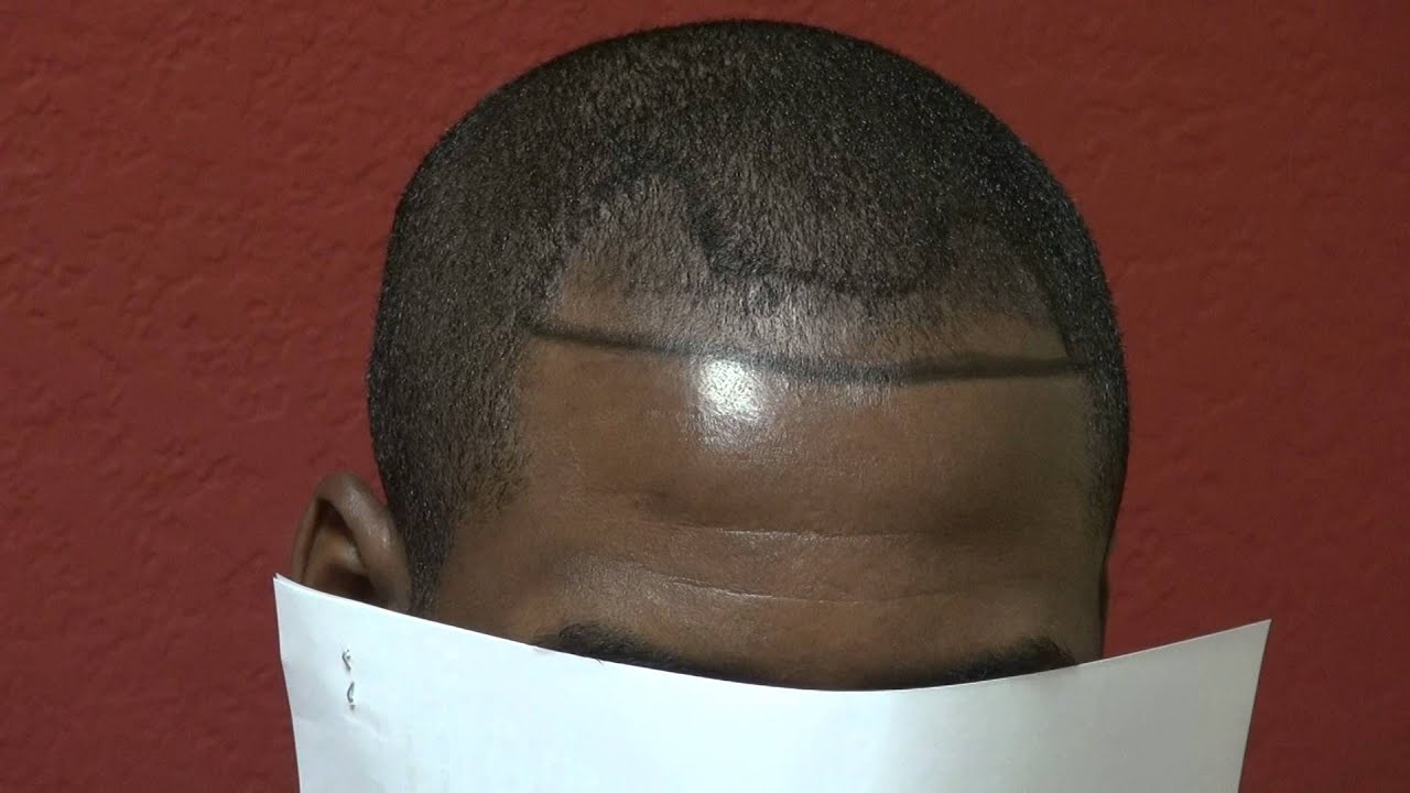 Black Male Bald Hair Loss Receding Hairline And Corners