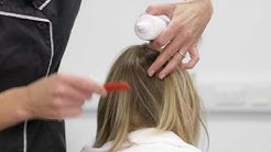 Treating scalp psoriasis