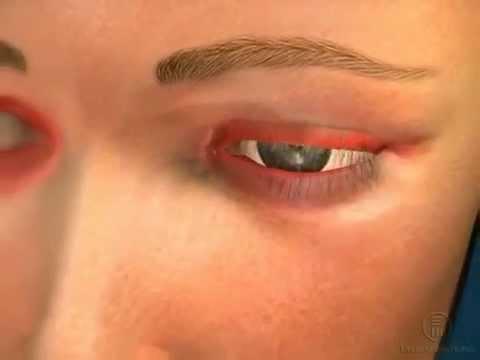 Блефарит симптомы и лечение