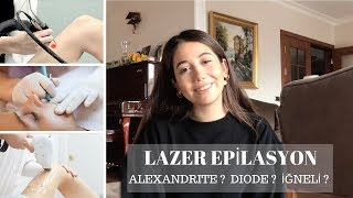 LAZER EPİLASYON DENEYİMİM | Fiyatlar, Diod, Alexandrite, İğneli