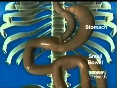 Mini-Gastric Bypass Surgery (Loop Bypass) – Animated Video