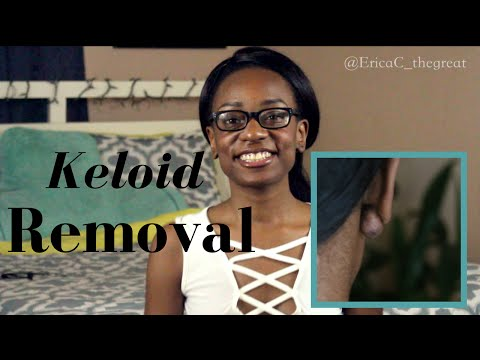 My Keloid Removal Experience