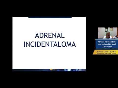 Adrenal Incidentaloma and