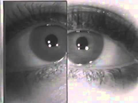 Horner's syndrome: Dilation Lag